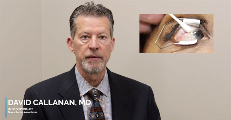 Video thumbnail of Dr. David Callanan discussing the use of YUTIQ, potential side effects and the ideal patient, with an inset of patient's eye during the injection administration.